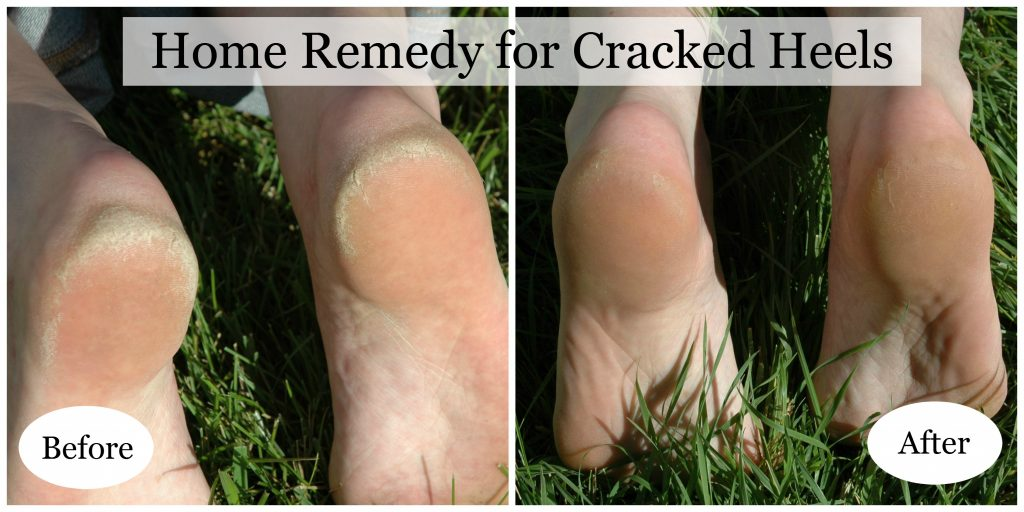 Cracked Heels Collage Final